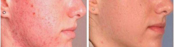 как да премахнете следите от пъпки по лицето