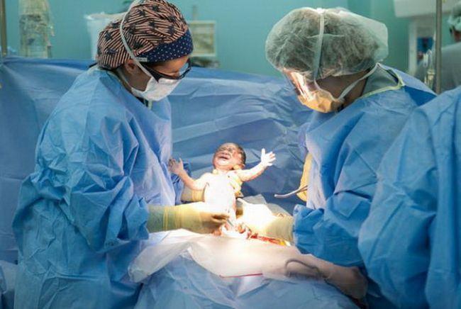 На фото ребенок родившийся после кесарева сечения
