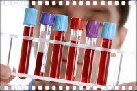 Общ анализ на кръв в едно дете - дешифриране мистериозните символи