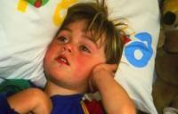 Зачервяване на бузите на детето