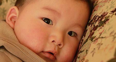 Потница у новорожденных: как выглядит, почему появляется