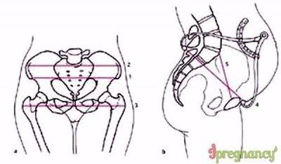 схема размеров женского таза