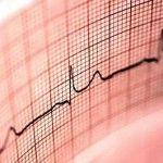 Pasiune Heartfelt. Cele mai frecvente modificări ECG detectate în timpul sarcinii