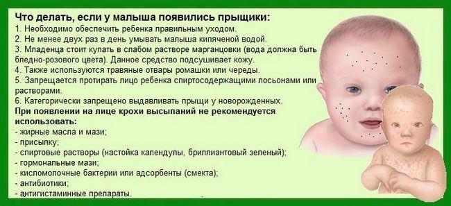 Лечение на акне по лицето при кърмачета