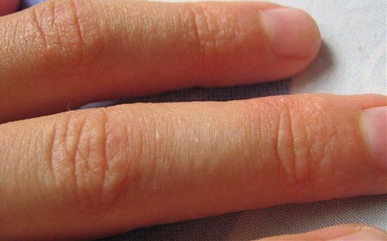 Обрив по ръката на детето под формата на малки петна по ръцете