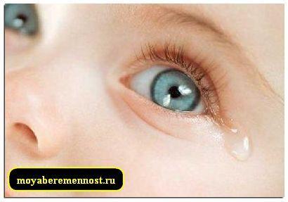 Sondarea canal lacrimal la nou-nascuti
